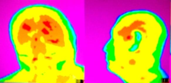 Университетская клиника головной боли